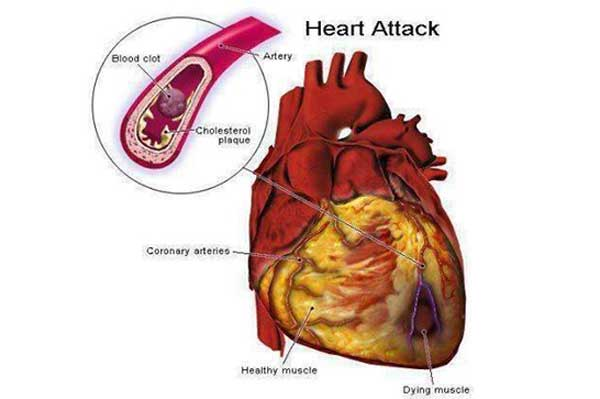 Top 10 ways to avoid a heart attack ccuart
