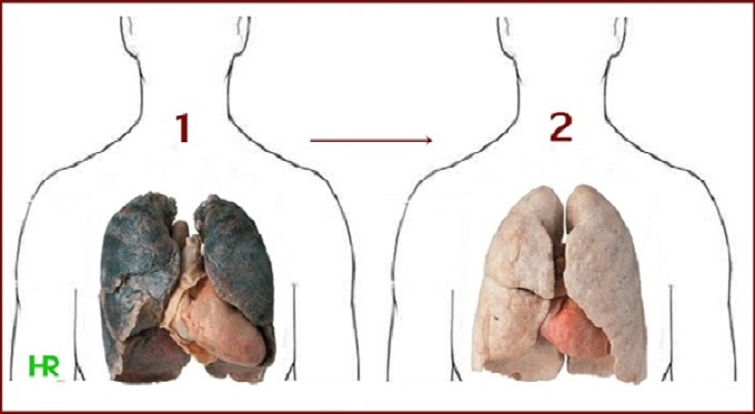 Smokers should read this these 4 ingredients can cleanse your lungs smokers should read this these 4 ingredients can cleanse your lungs from nicotine and tar ccuart Images