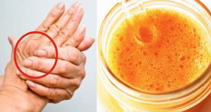 The-Miracle-Drink-That-Treats-Arthritis