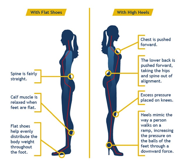 665b68098f1f Dangers Of High Heels   How They Affect The Body