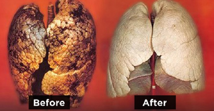 This image provided by Britain's Department of Health showing a healthy lung, left and a diseased lung, right, is one of the graphic pictures to be place on packs of cigarettes to discourage smokers. Words failed to stamp out smoking, so Britain will require graphic pictures of diseased organs on cigarette packs next year, the government announced Wednesday, Aug. 29, 2007. The images include a diseased lung, a chest cut open for heart surgery, and a large tumor on a man's neck. In all, Britain chose 15 images from a selection developed by the European Commission. Britain will be the first member of the European Union to require such warnings, Health Secretary Alan Johnson said.  The new warnings will be required on cigarette packs in the second half of 2008, the department said.  (AP Photo/Department of Health/ho)  **  EDITORIAL USE ONLY NO SALES  **