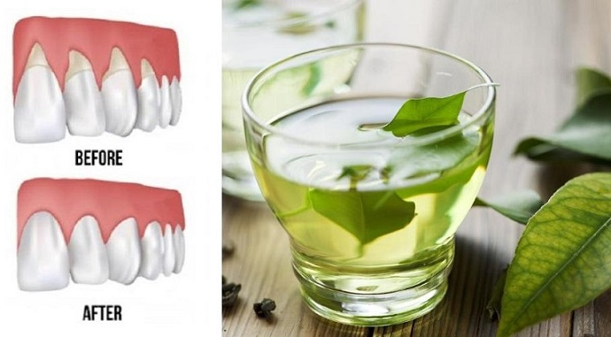 These 4 Natural Remedies Will Repair Receding Gums